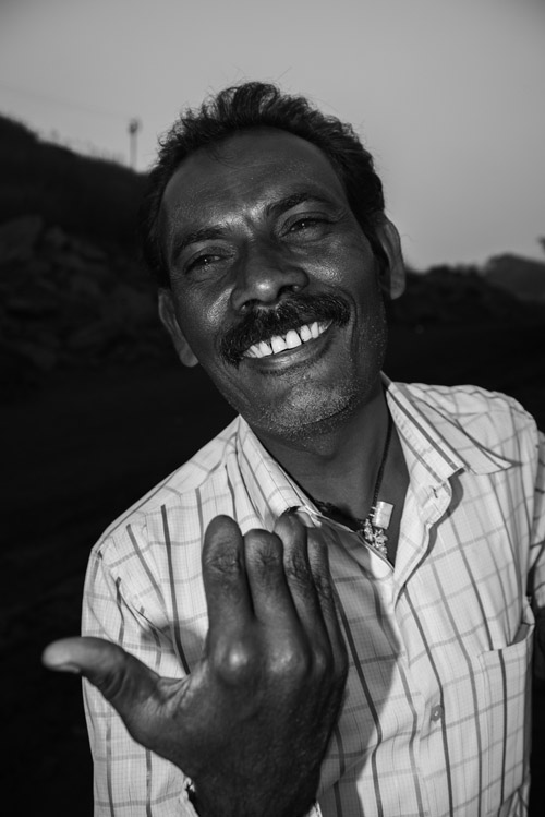 Ram Kumar, a worker for one of Dhanbad's notorious 'coal mafias', lost his fingers while tying an explosive during the process of open-cast mining in Jairampur. Jharkhand, India. June 2015.